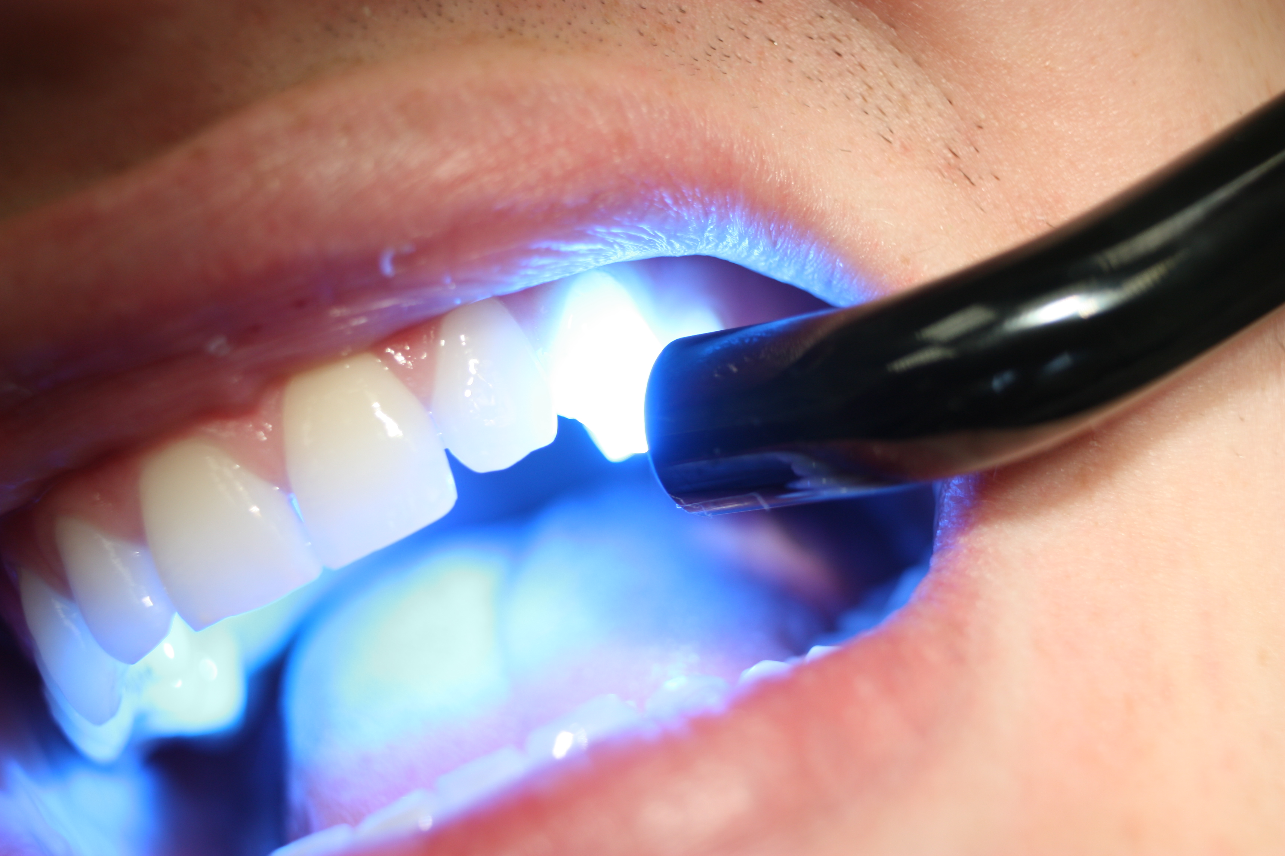 Get the Most From Your Dental Benefits