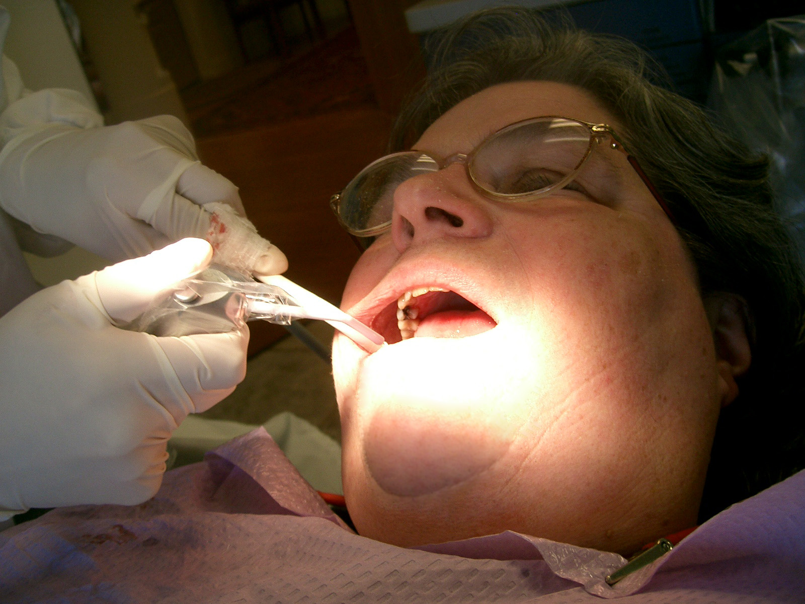 person getting dental work completed