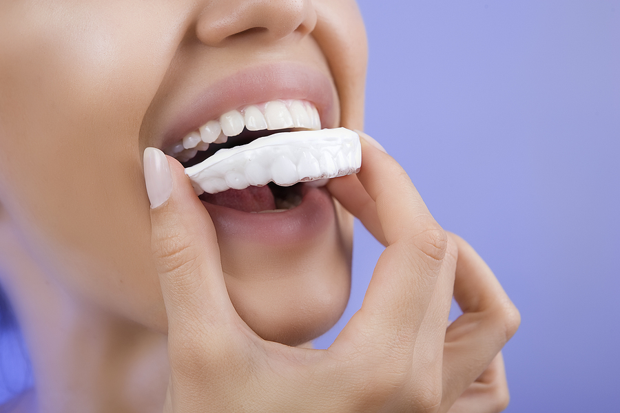 Teeth whitening in the office can make a great gift for someone on your list!