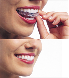 Invisalign aligners being inserted