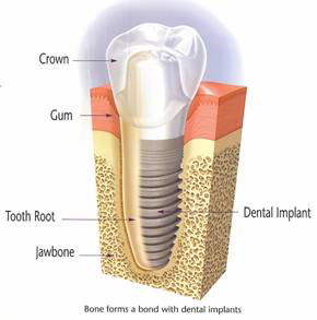 Image of implanted dental implant