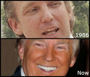 Donald Trump before and after porcelain veneers