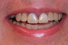 Before Bedminster Porcelain Crowns