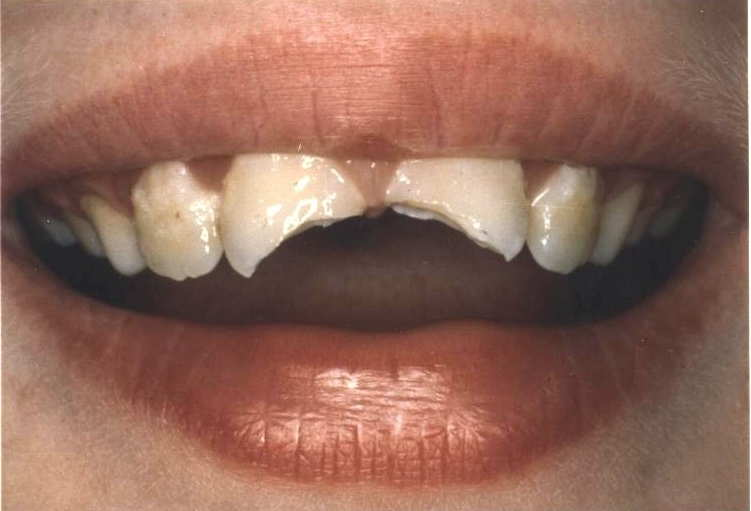 New Jersey Cosmetic Dentist Nj Cosmetic Dentistry Family
