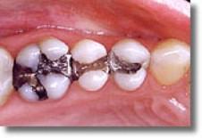 Silver (amalgam) fillings are made mostly of mercury.