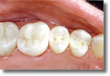 White composite fillings are 100% Mercury-free.
